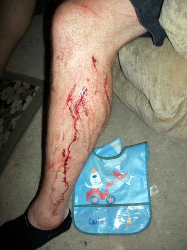 Bloody Leg Bob