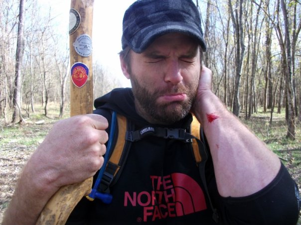 Bob Bleeding in the Woods