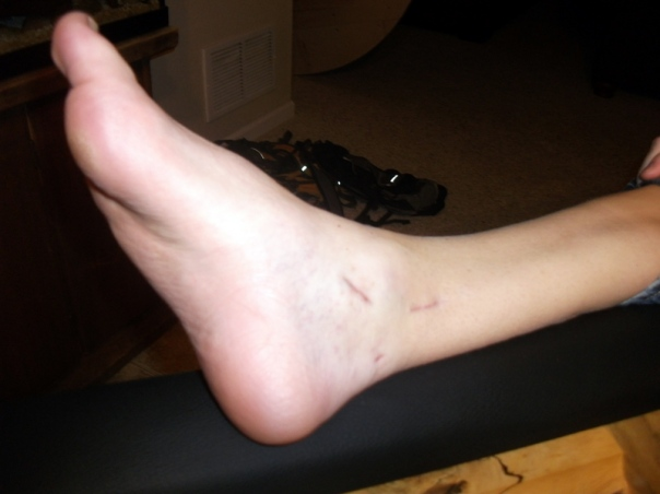 Robby's ankle