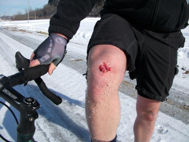 Bob's bloody knee