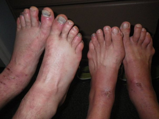 Nasty feet from Adventure Racing